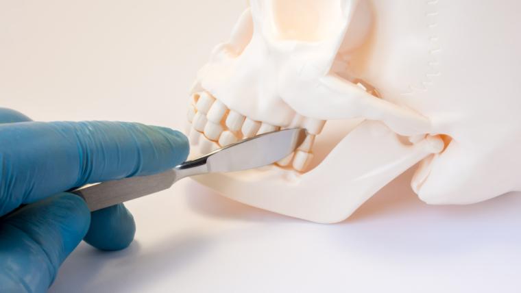 Cirugía maxilofacial: ¿en qué casos es necesaria?