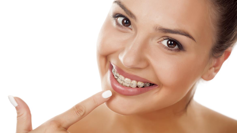 ¿Es posible realizarse una Ortodoncia durante la edad adulta?